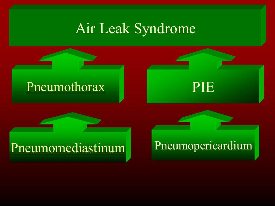 Air Leak Syndrome Pneumothorax PIE Pneumopericardium Pneumomediastinum