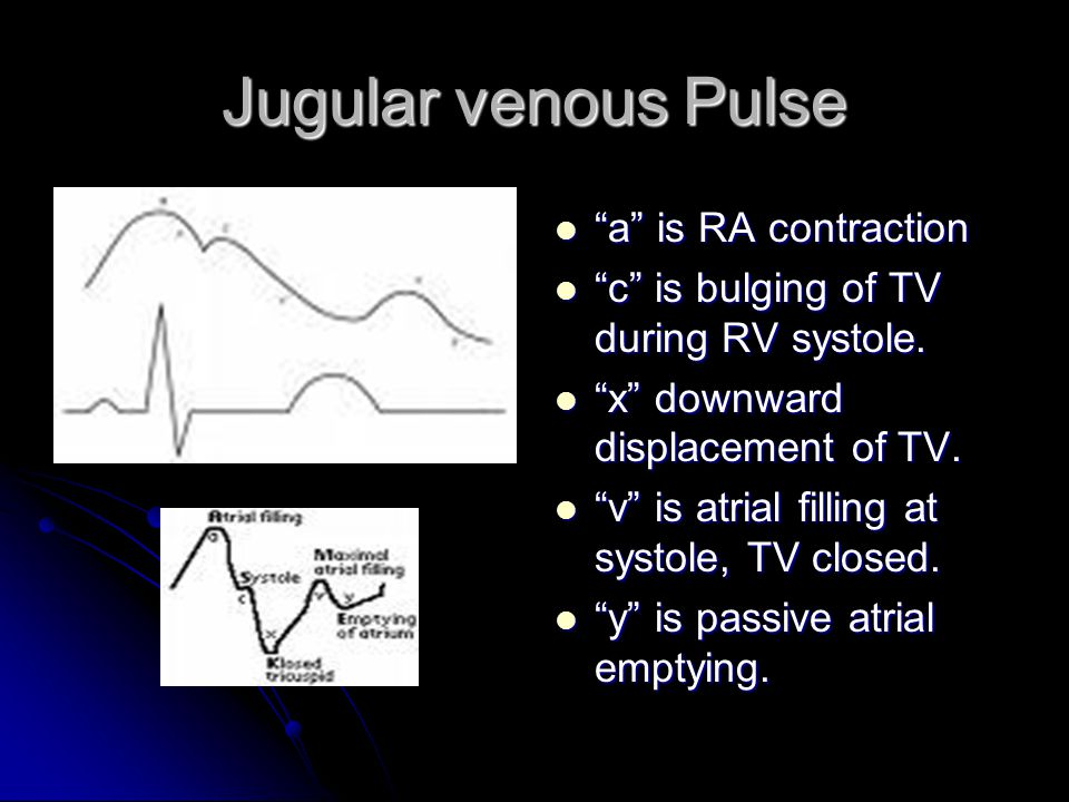Jugular venous Pulse a is RA contraction