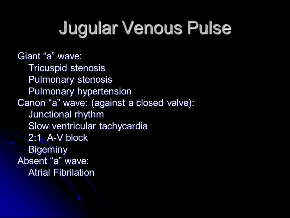 Jugular Venous Pulse Giant a wave: Tricuspid stenosis