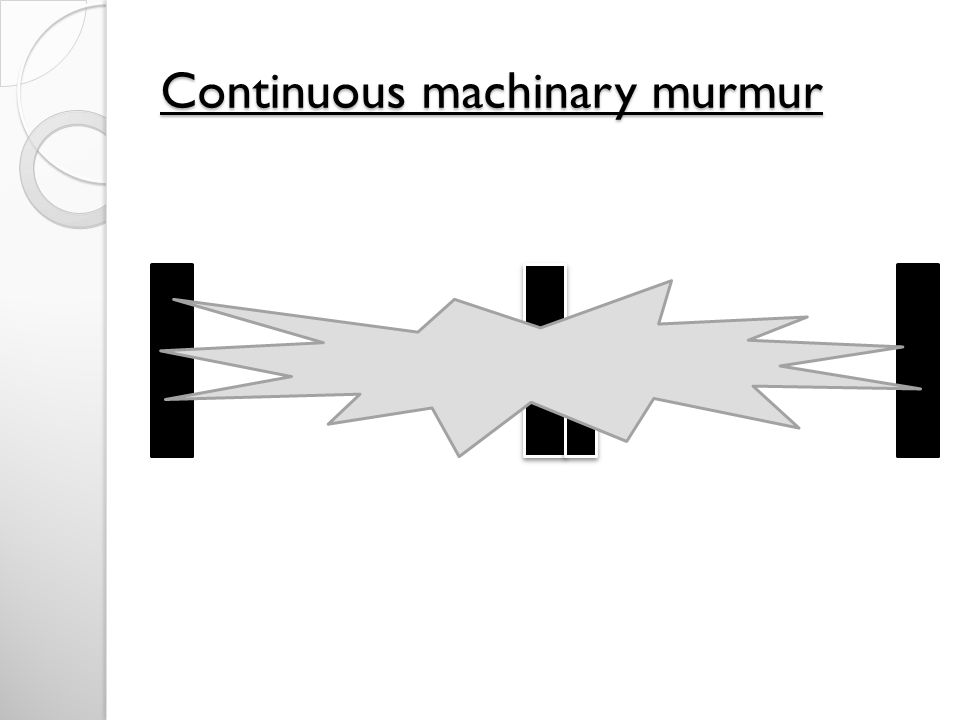 Continuous machinary murmur