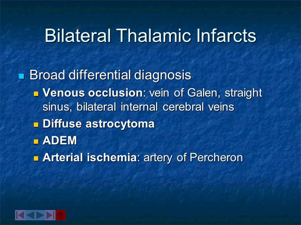 Bilateral Thalamic Infarcts