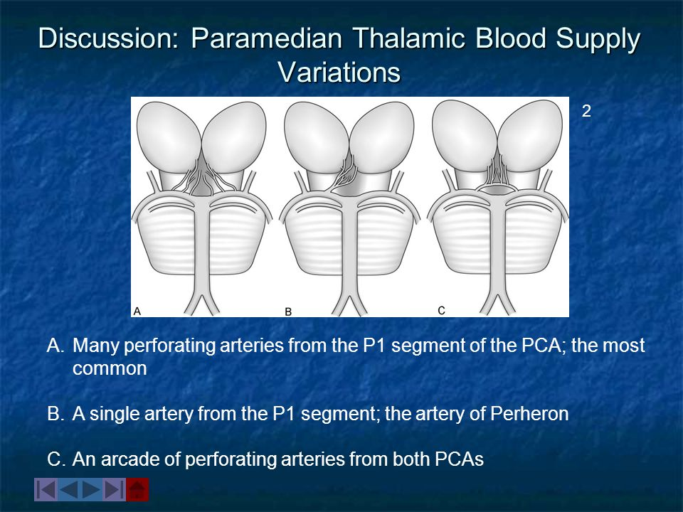 Discussion: Paramedian Thalamic Blood Supply Variations