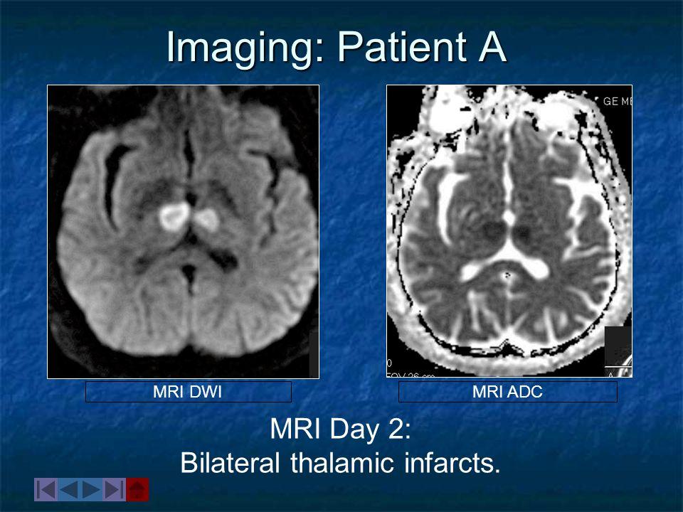 MRI Day 2: Bilateral thalamic infarcts.