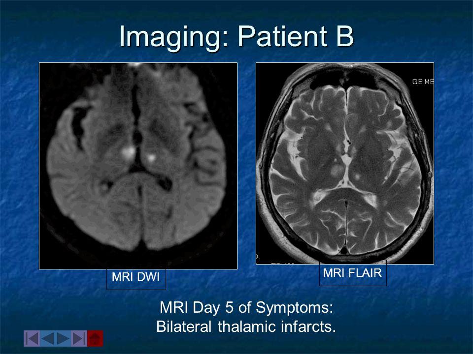 Bilateral thalamic infarcts.