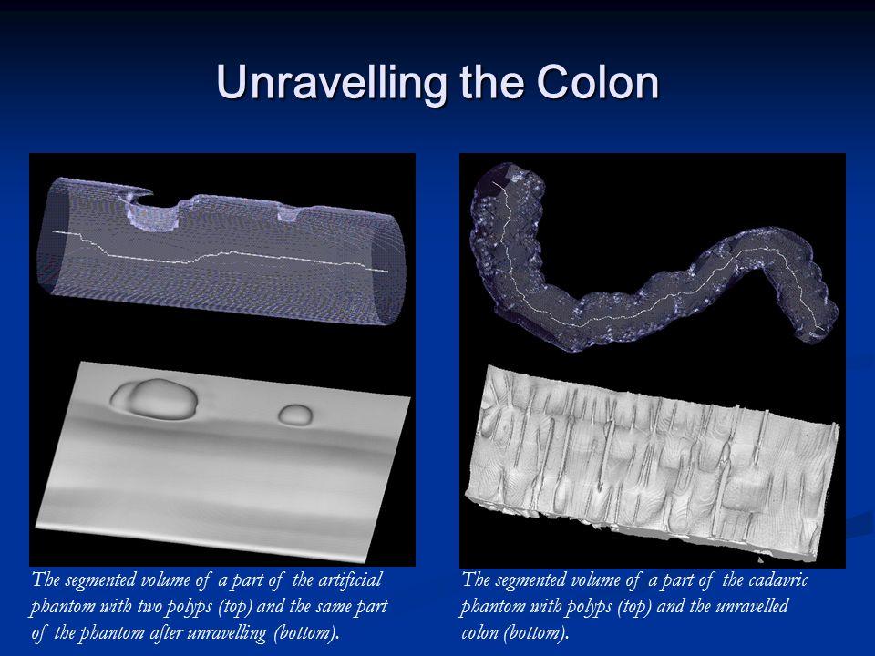 Unravelling the Colon