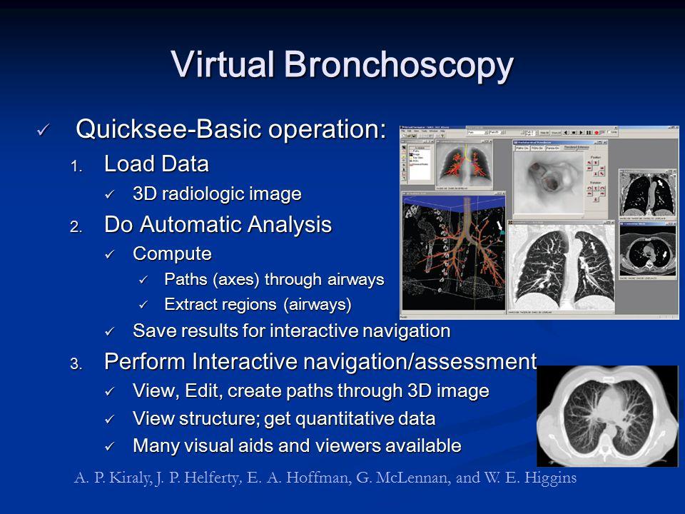 Virtual Bronchoscopy Quicksee-Basic operation: Load Data