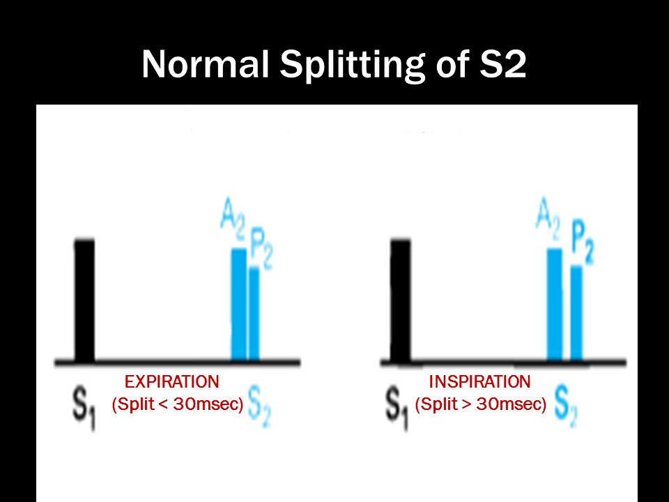 Normal Splitting of S2 (Split < 30msec) INSPIRATION