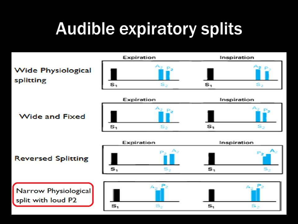 Audible expiratory splits