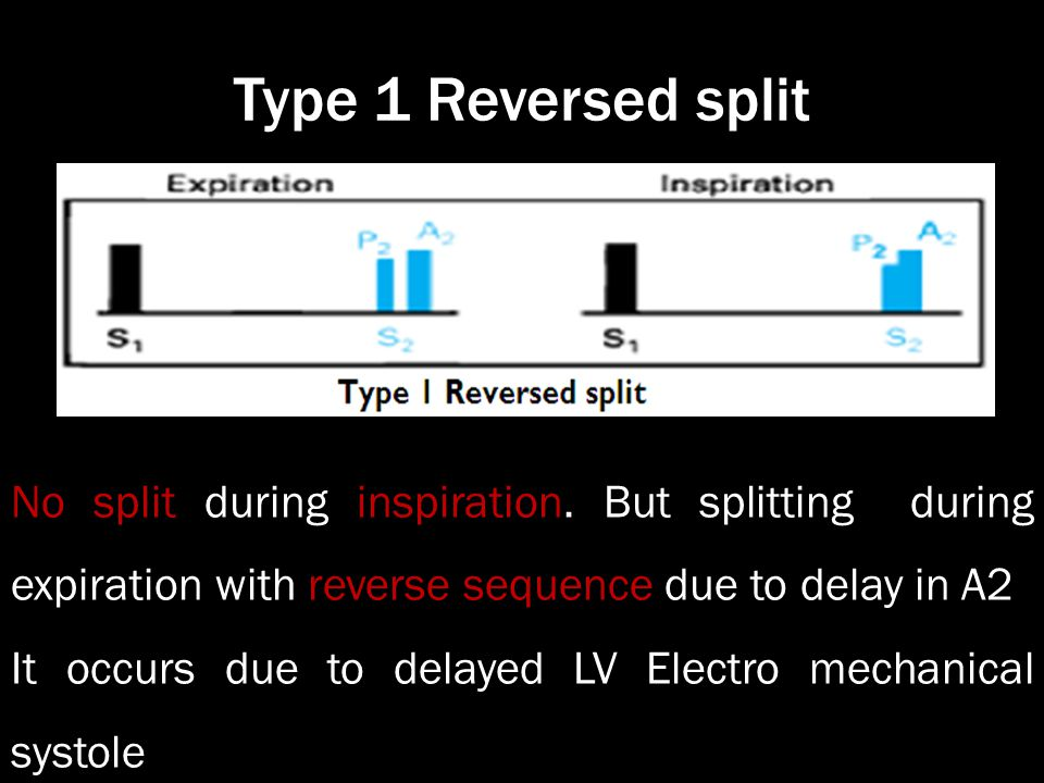 Type 1 Reversed split No split during inspiration. But splitting during expiration with reverse sequence due to delay in A2.