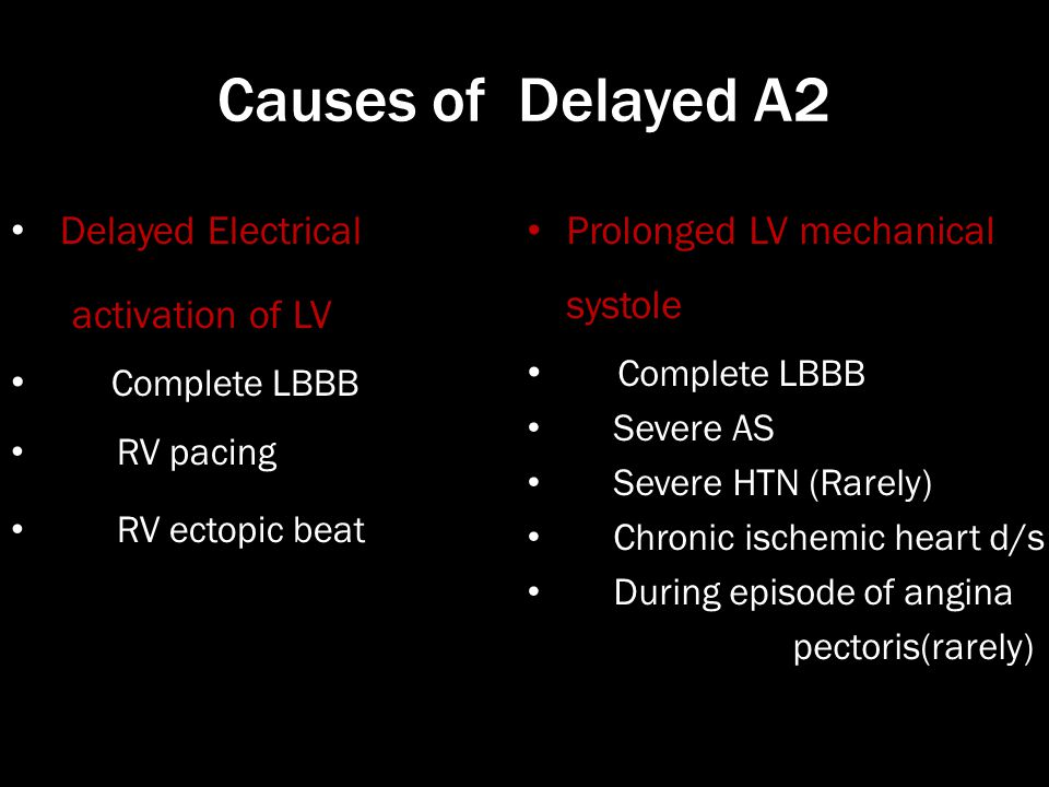 Causes of Delayed A2 Delayed Electrical activation of LV Complete LBBB