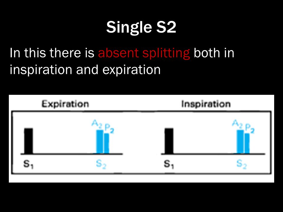 Single S2 In this there is absent splitting both in inspiration and expiration