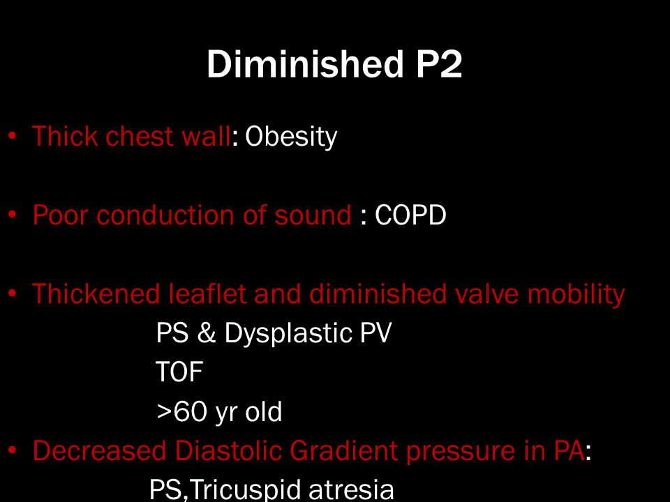 Diminished P2 Thick chest wall: Obesity