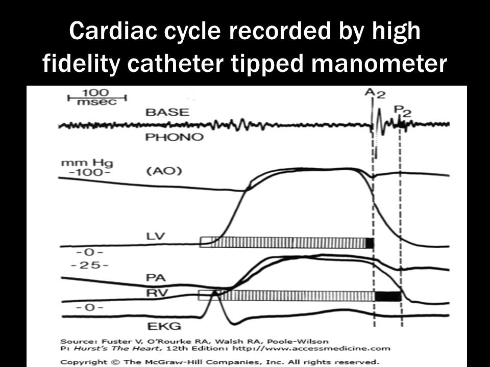 Cardiac cycle recorded by high fidelity catheter tipped manometer