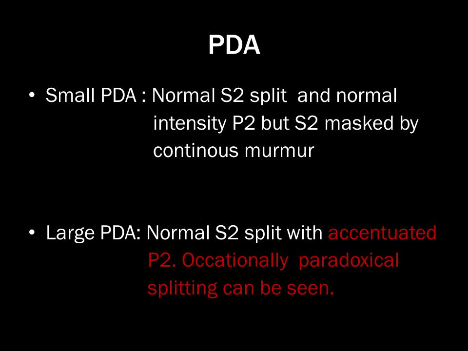 PDA Small PDA : Normal S2 split and normal