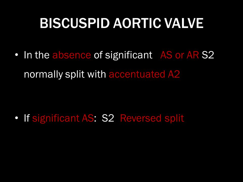 BISCUSPID AORTIC VALVE