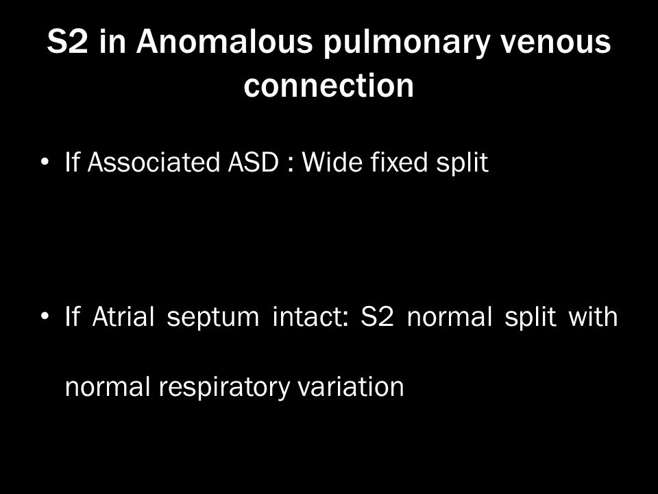 S2 in Anomalous pulmonary venous connection