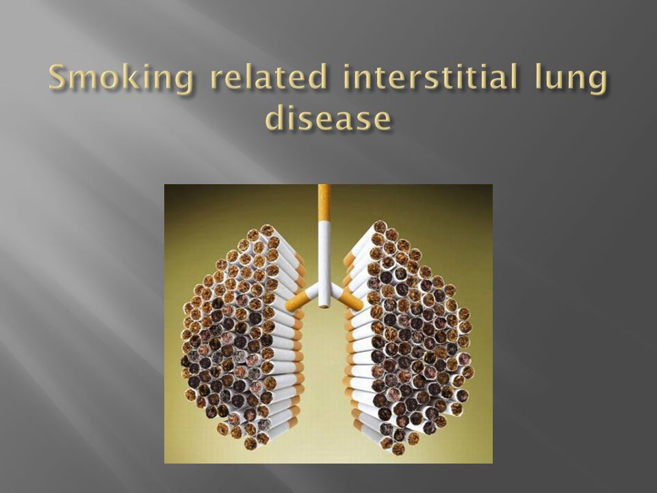 Smoking related interstitial lung disease