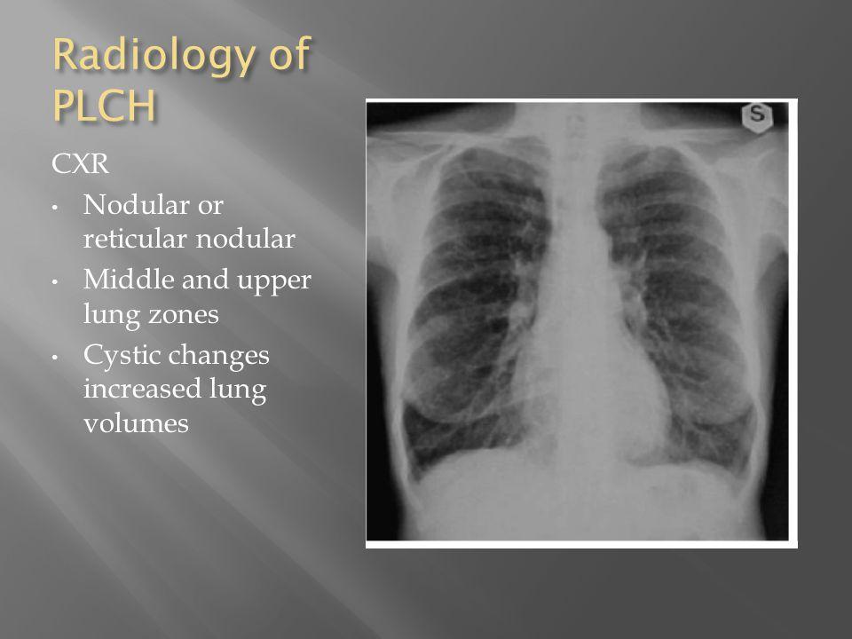 Radiology of PLCH CXR Nodular or reticular nodular