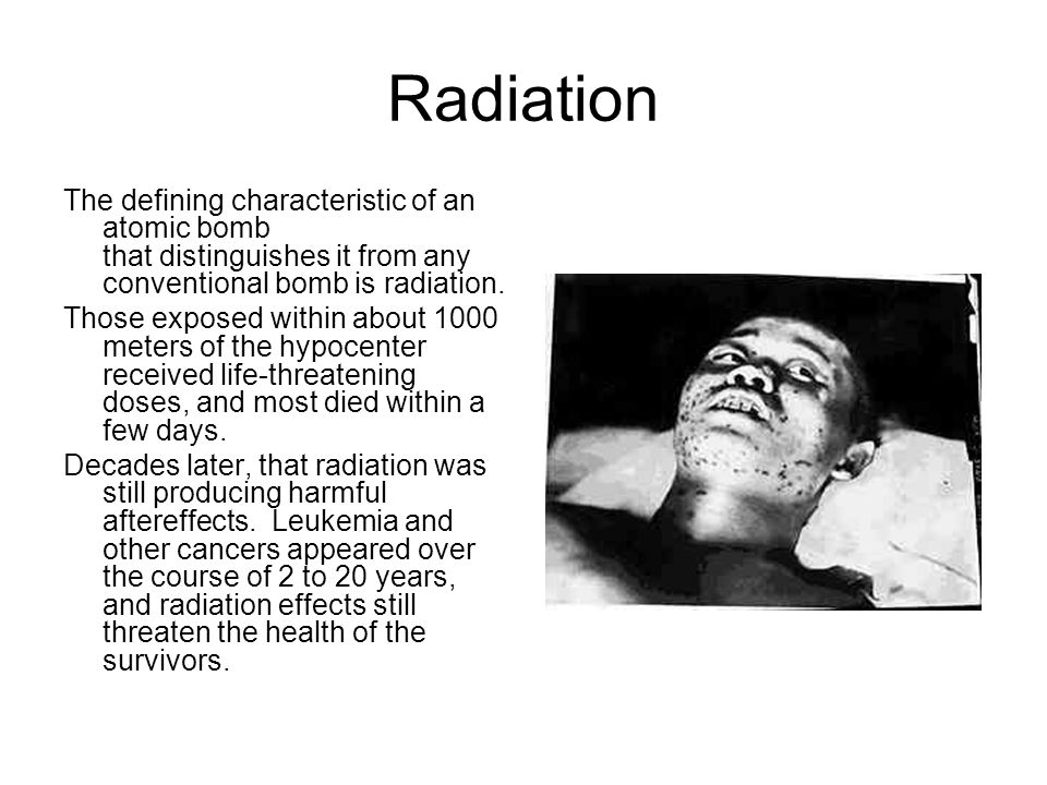 Radiation The defining characteristic of an atomic bomb that distinguishes it from any conventional bomb is radiation.