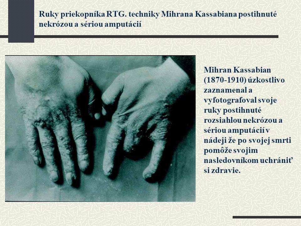 Ruky priekopníka RTG. techniky Mihrana Kassabiana postihnuté nekrózou a sériou amputácií