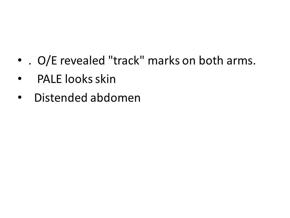 . O/E revealed track marks on both arms.