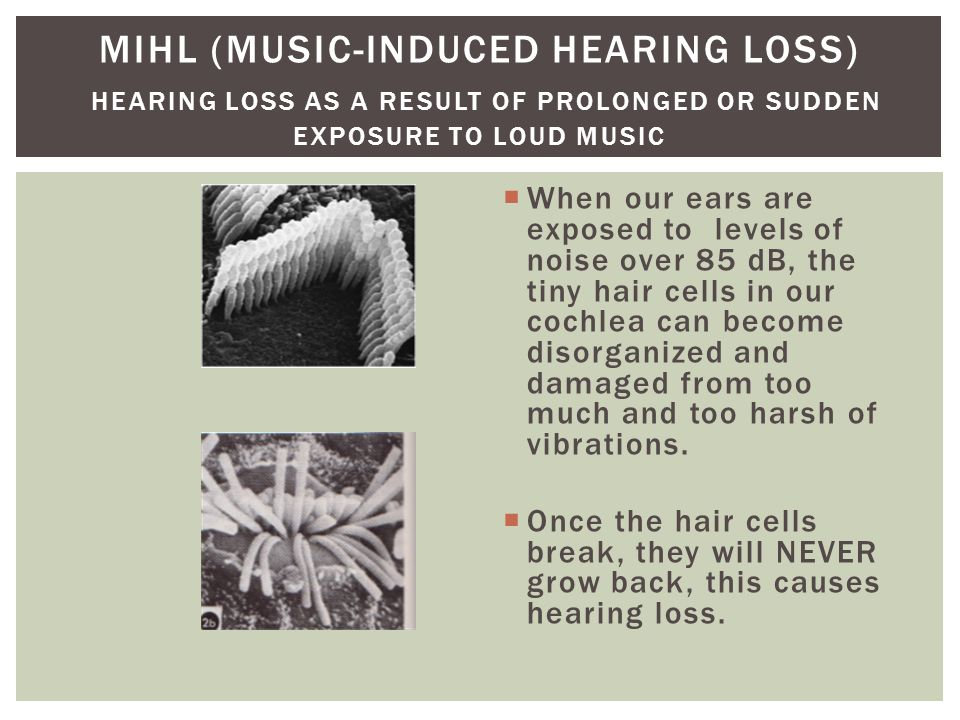 MIHL (Music-Induced Hearing Loss) Hearing loss as a result of prolonged or sudden exposure to loud Music