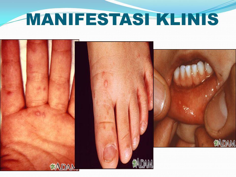 MANIFESTASI KLINIS