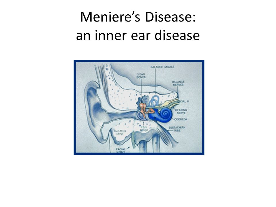 Meniere's Disease: an inner ear disease