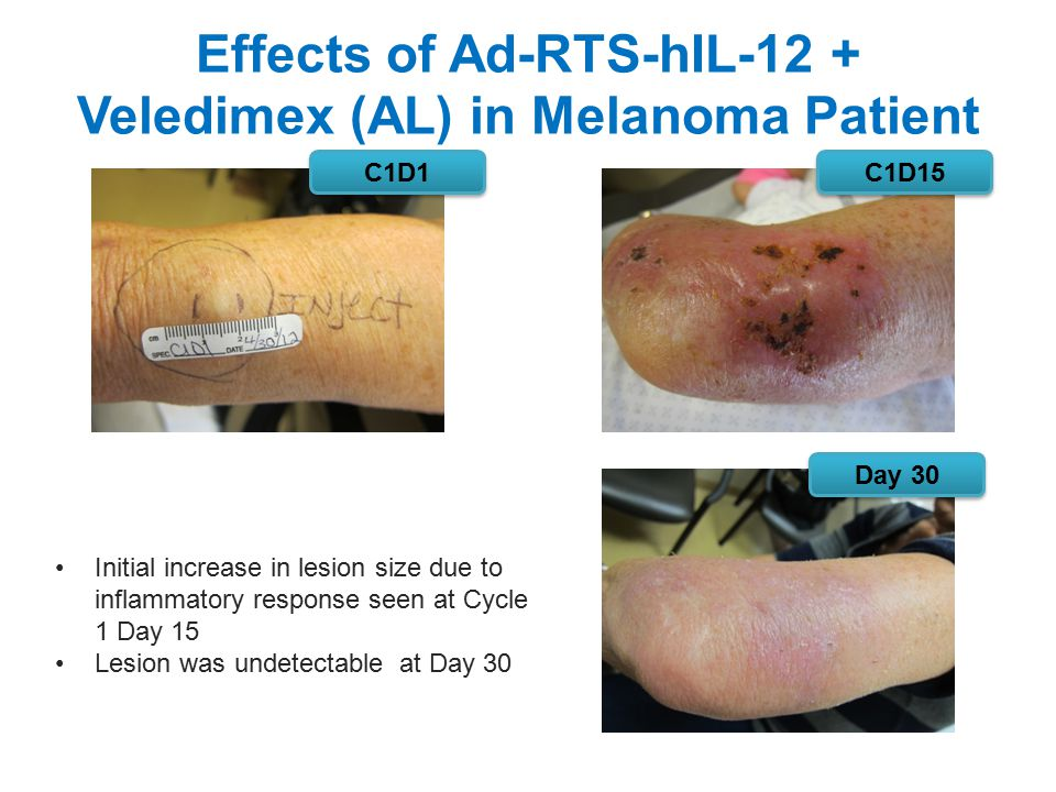 Effects of Ad-RTS-hIL-12 + Veledimex (AL) in Melanoma Patient