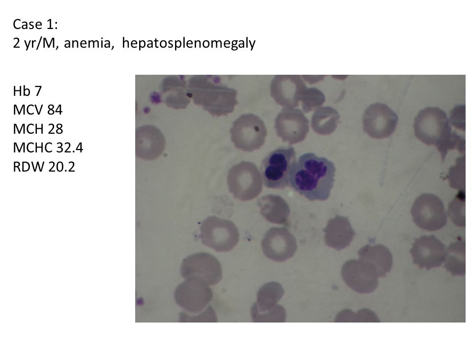 Case 1: 2 yr/M, anemia, hepatosplenomegaly Hb 7 MCV 84 MCH 28 MCHC 32.4 RDW 20.2