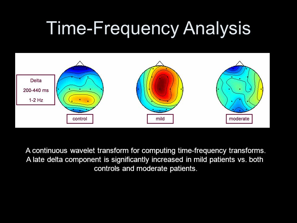 Time-Frequency Analysis