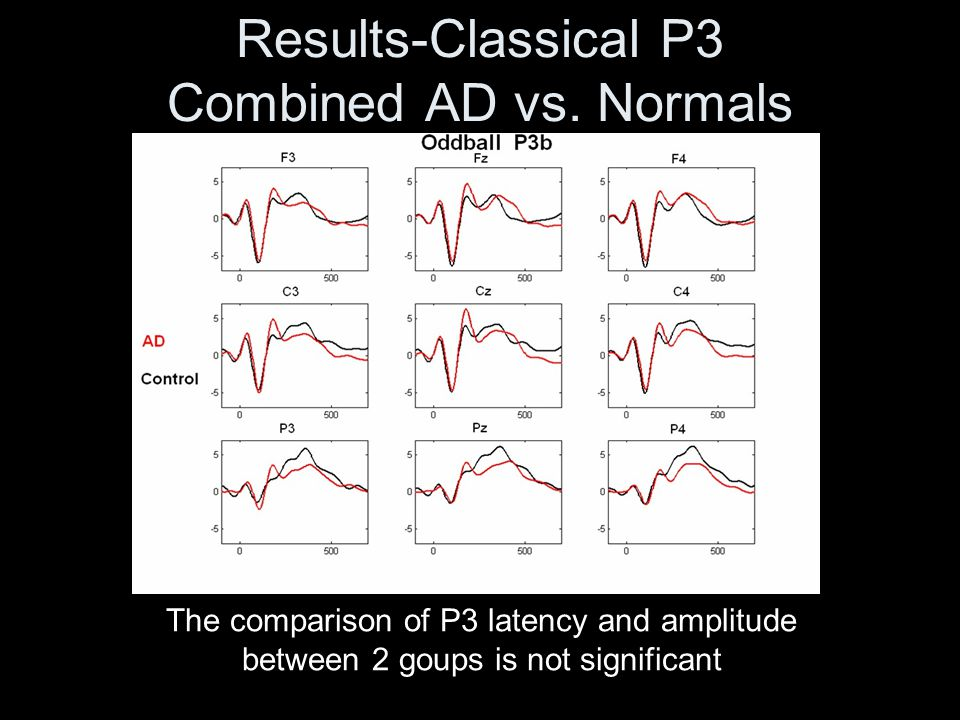 Results-Classical P3 Combined AD vs. Normals