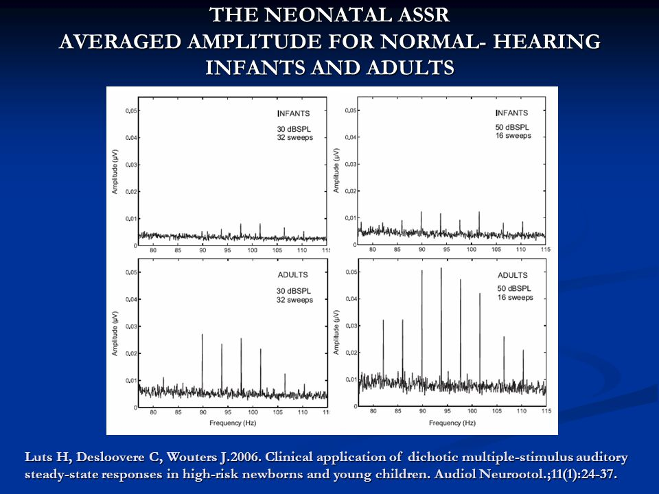 THE NEONATAL ASSR AVERAGED AMPLITUDE FOR NORMAL- HEARING INFANTS AND ADULTS