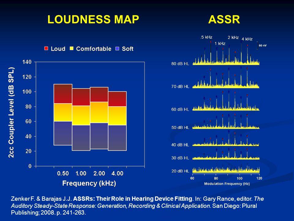 LOUDNESS MAP ASSR