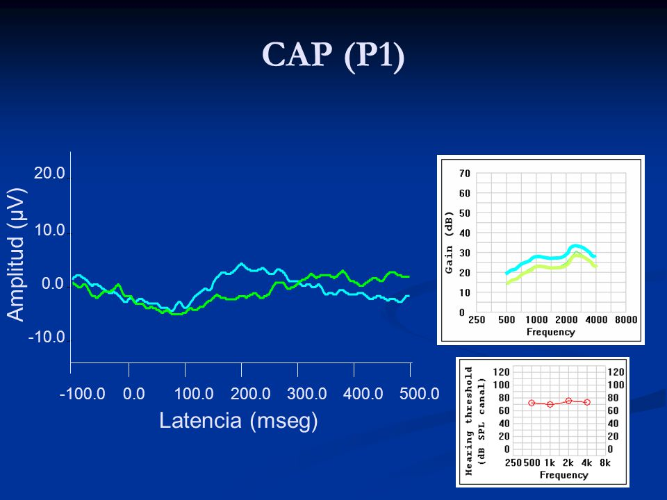 CAP (P1) Amplitud (µV) Latencia (mseg) 20.0 10.0 0.0 -10.0 -100.0 0.0