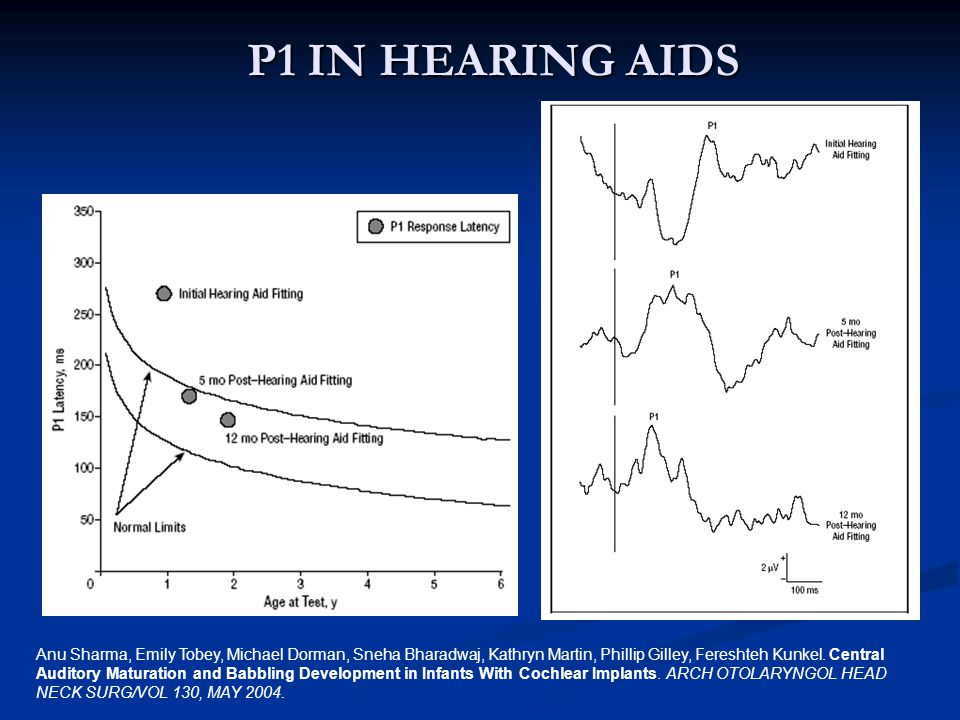 P1 IN HEARING AIDS P1 latencies changes for child with a congenital hearing impairment fitting with hearing aids at age 11 months.