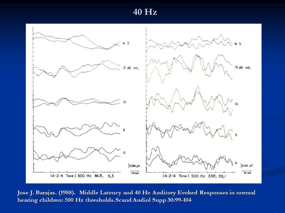 40 Hz Publication of Galambos et al (1981)- 40 Hz: superposition of transient middle latencies responses.