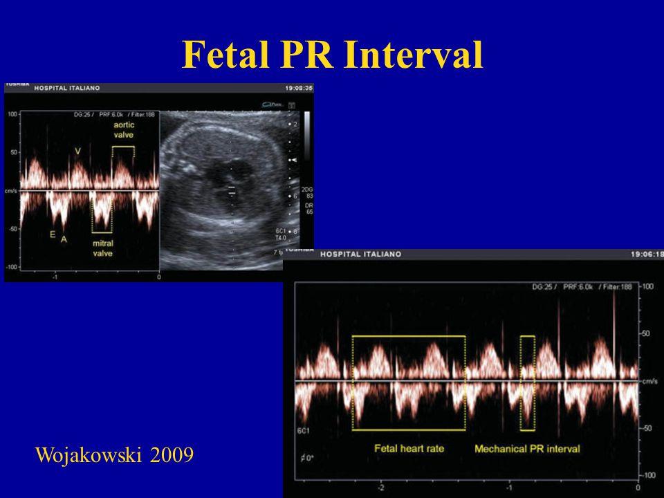 Fetal PR Interval Wojakowski 2009