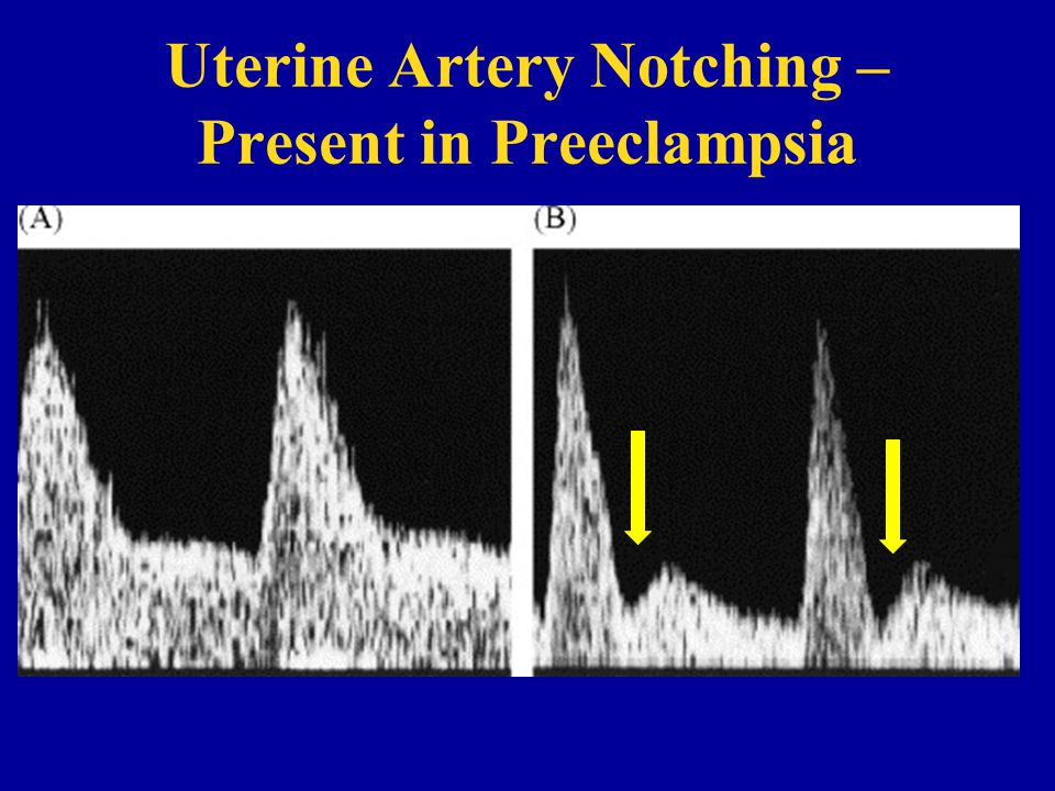 Uterine Artery Notching – Present in Preeclampsia