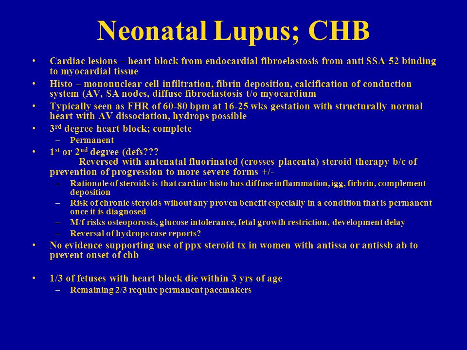 Neonatal Lupus; CHB Cardiac lesions – heart block from endocardial fibroelastosis from anti SSA-52 binding to myocardial tissue.