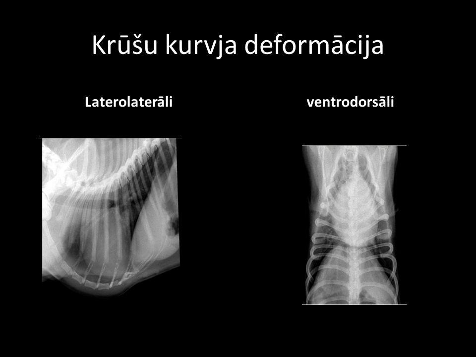 Krūšu kurvja deformācija