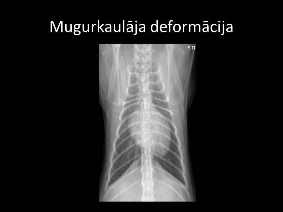 Mugurkaulāja deformācija