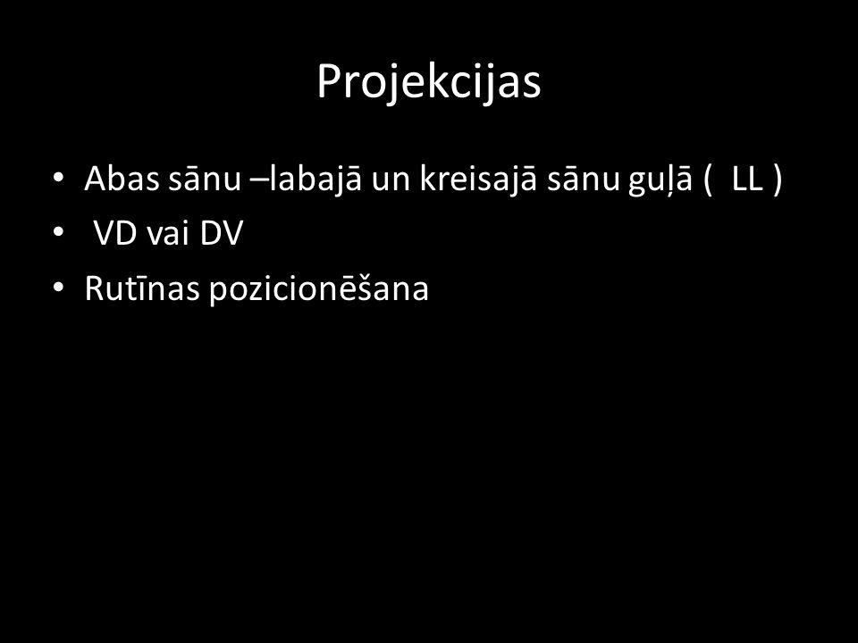 Projekcijas Abas sānu –labajā un kreisajā sānu guļā ( LL ) VD vai DV