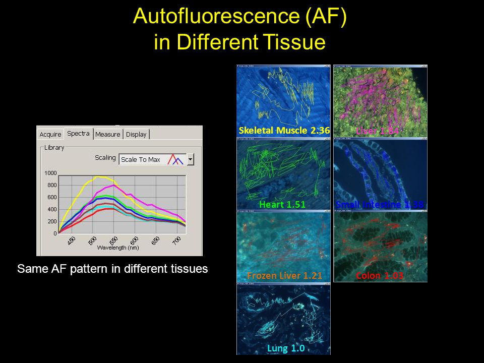 Autofluorescence (AF)
