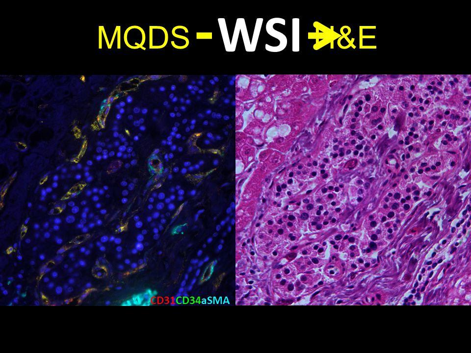 WSI MQDS H&E. CD31CD34aSMA.