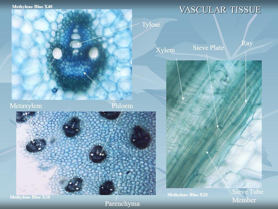 VASCULAR TISSUE Tylose Ray Sieve Plate Xylem Metaxylem Phloem