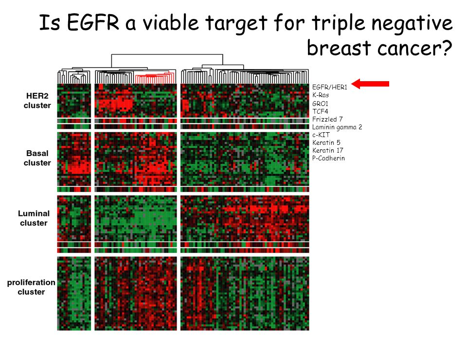Is EGFR a viable target for triple negative breast cancer