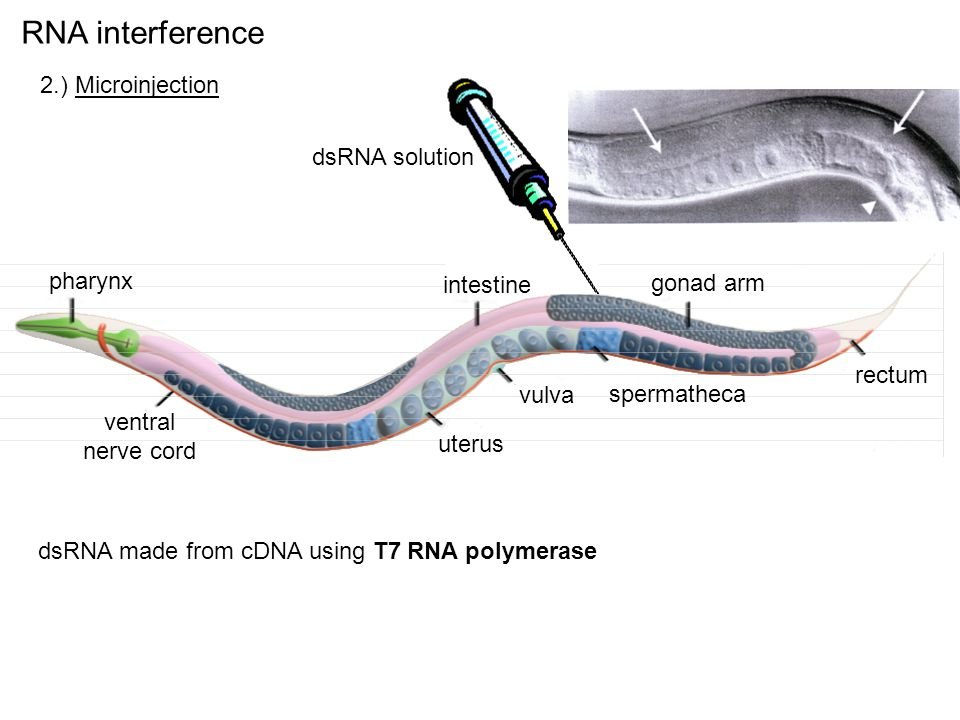 RNA interference 2.) Microinjection rectum spermatheca gonad arm vulva