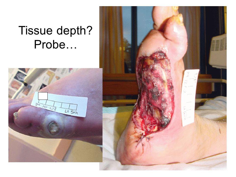 Tissue depth Probe… 10