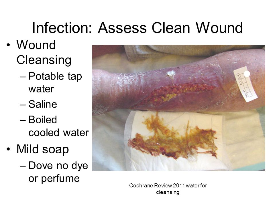 Infection: Assess Clean Wound